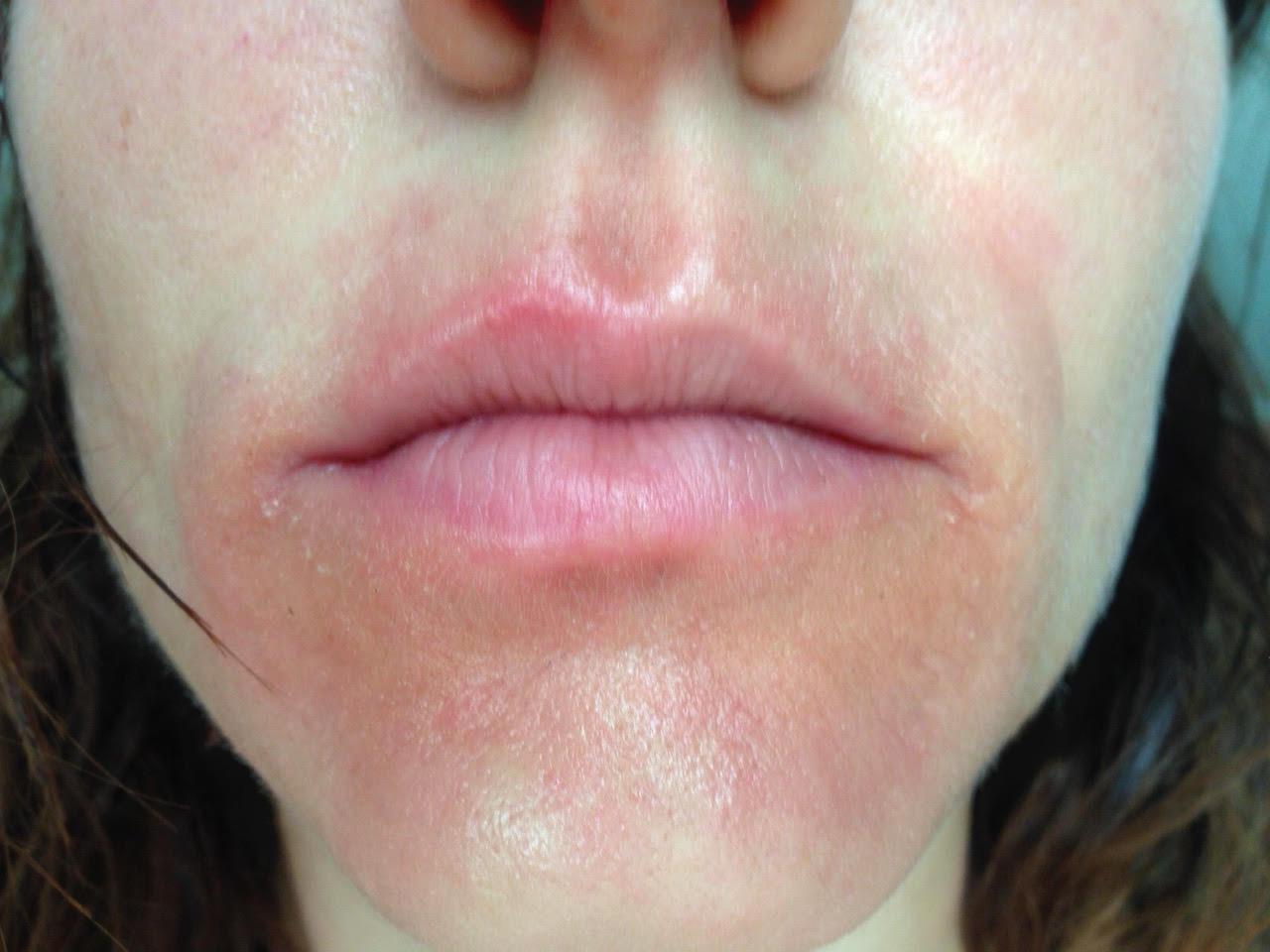 tratament dermatita periorala