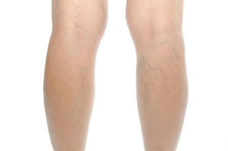Vinisioare inestetice pe picioare